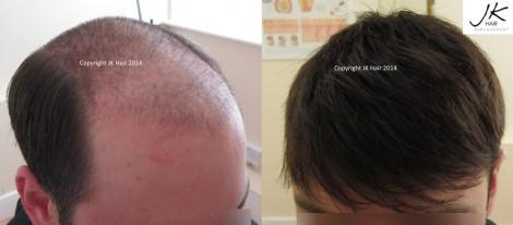 Advanced hair restoration at JK Hair Replacement