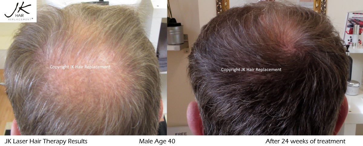 Laser Hair Therapy results DP
