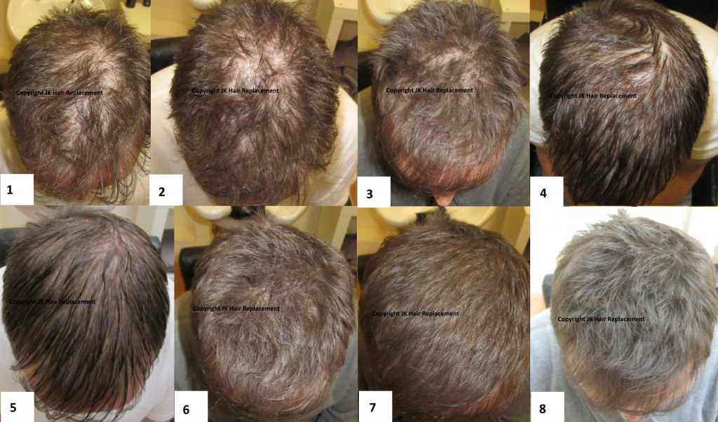 Jk Laser Hair Therapy For Hair Regrowth For Hair Thinning