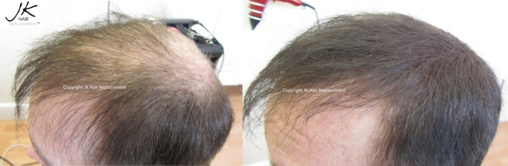 JK Scalp Shader for concealing hair loss and alopecia