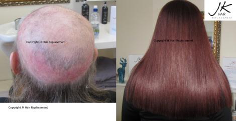 Hair Extensions Dublin
