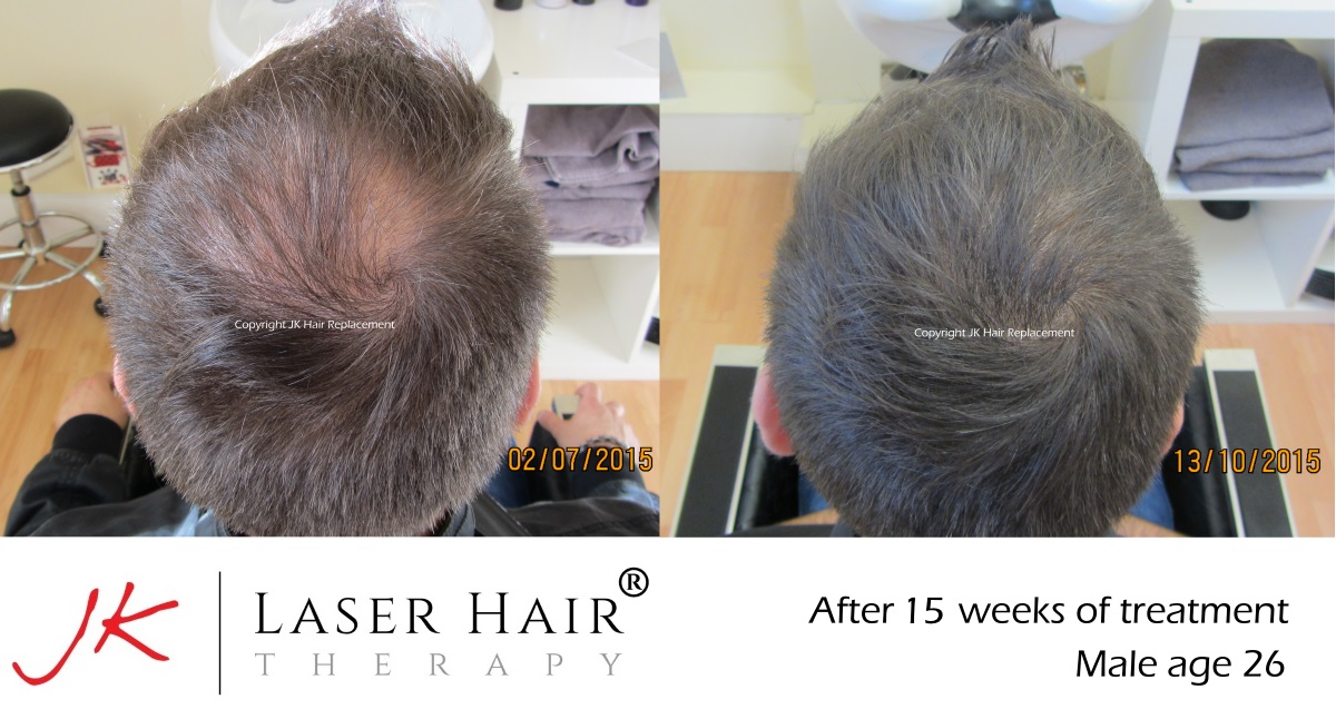 Laser Hair Therapy Dublin