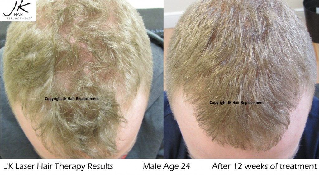Male 25 JK Laser Hair Therapy 12 week results