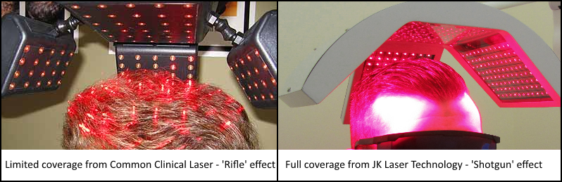 Laser Hair Therapy in Ireland