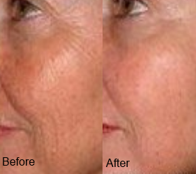 Anti-aging before and after