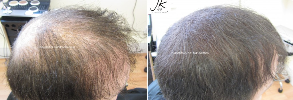 JK Scalp Shader hides thinning hair and scalp