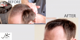 JK Keratin Hair Building Fibers - Baldness Cure Hair Loss Cure