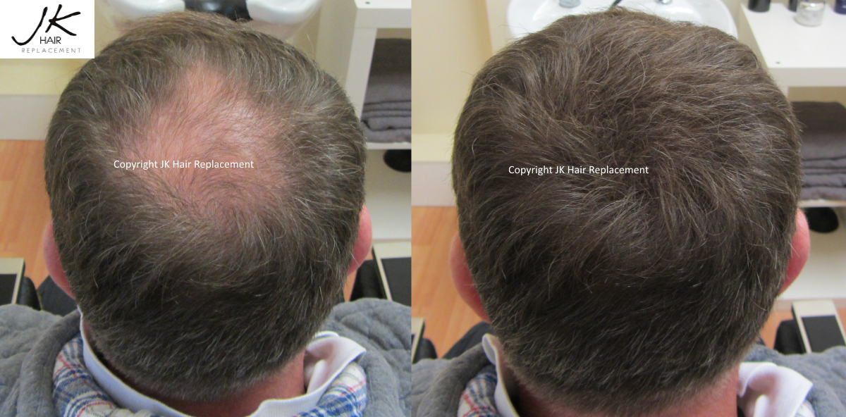 JK Keratin Hair Building Fibers Dublin Before and After 1