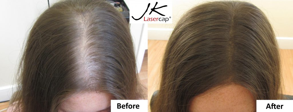 JK Laser Cap girl before and after results Dublin